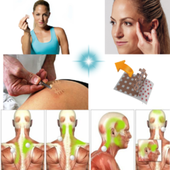 Crosstape Acupuntura Dolor Muscular Contractura Agnovedades